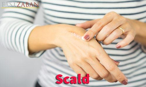 آموزش تصویری ۵۰۴ - کلمه scald
